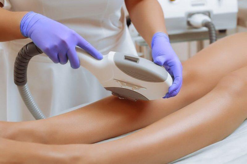 Dermatologista terá que indenizar paciente por queimaduras durante depilação a laser