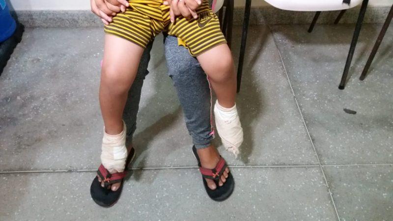 Homem morre no Trauma de Campina após sofrer queimaduras em fogueira junina